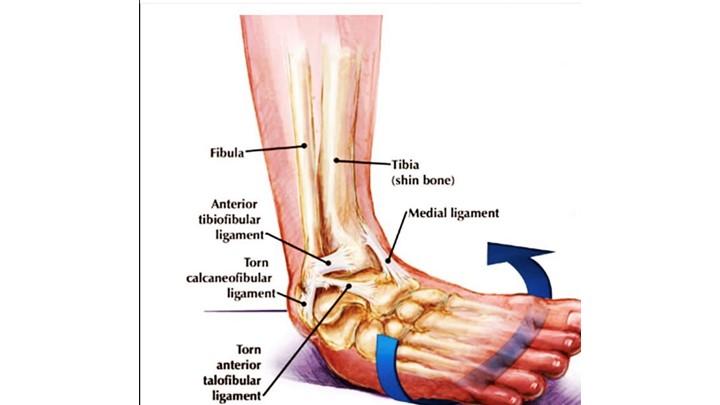 Ankle Sprain achilles tendinitis