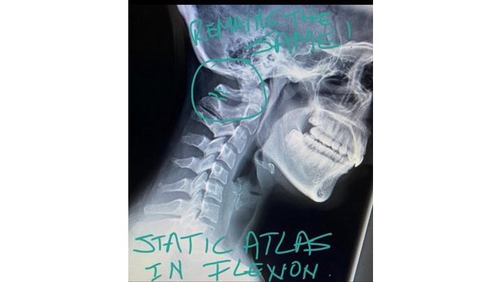 Neck/TMJ - Cervical spine